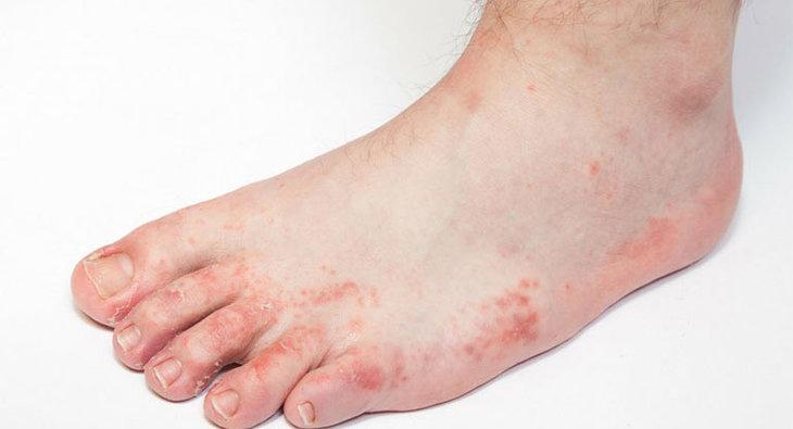 Ngứa mu bàn chân, bàn tay có thể do nhiễm nấm da