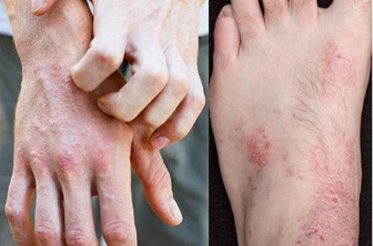 Viêm da cơ địa gây ngứa mua bàn chân, mu bàn tay