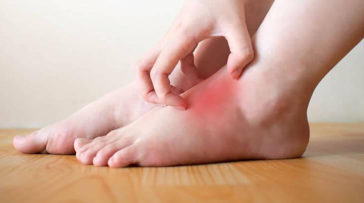 Ngứa mu bàn chân, bàn tay là bệnh gì?