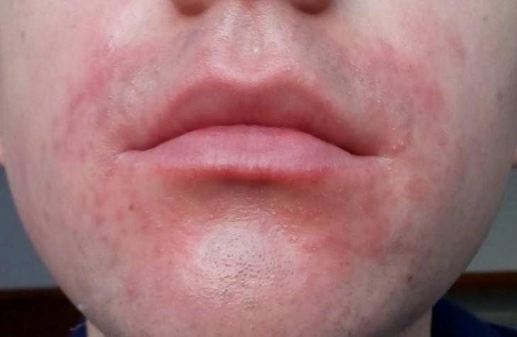 Mẩn ngứa quanh miệng do viêm da cơ địa