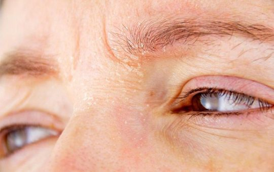 Ngứa vùng da quanh mắt là bệnh gì? Điều trị thế nào?