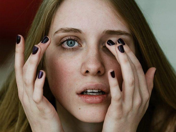 Dụi mắt thường xuyên khiến vùng da quanh mắt bị tổn thương