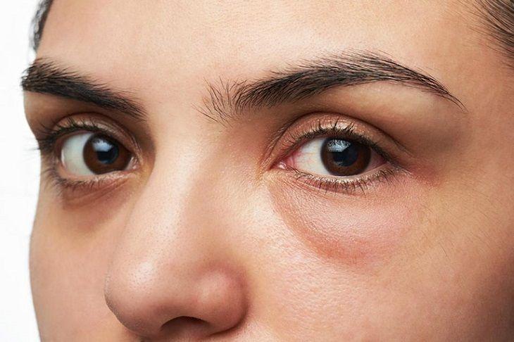 Vệ sinh, chăm sóc vùng da quanh mắt mỗi ngày