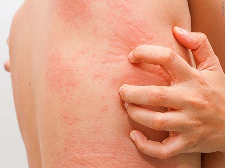Tìm hiệu về căn bệnh nổi mề đay ở lưng phổ biến ở nhiều người