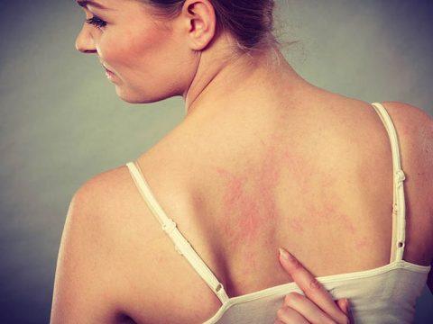 Dấu hiệu nhận biết chứng nổi mề đay ở lưng và bụng