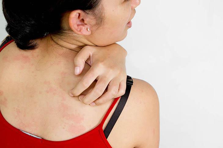 Nguyên nhân gây triệu chứng nổi mề đay ở lưng và bụng