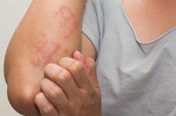 Nổi mề đay ở tay khiến nhiều người bệnh lo lắng