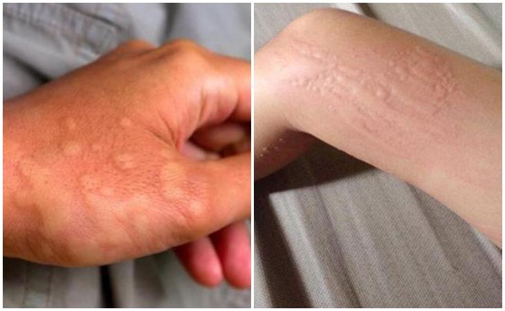 Nổi mẩn đỏ ở tay hoặc nổi mẩn đỏ ở chân có thể do nhiều nguyên nhân khác nhau
