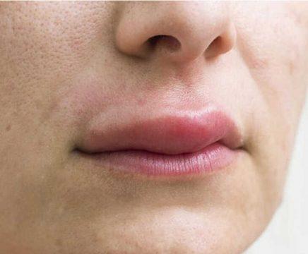 Mề đay sưng môi khiến người bệnh khó chịu, ảnh hưởng đến đời sống
