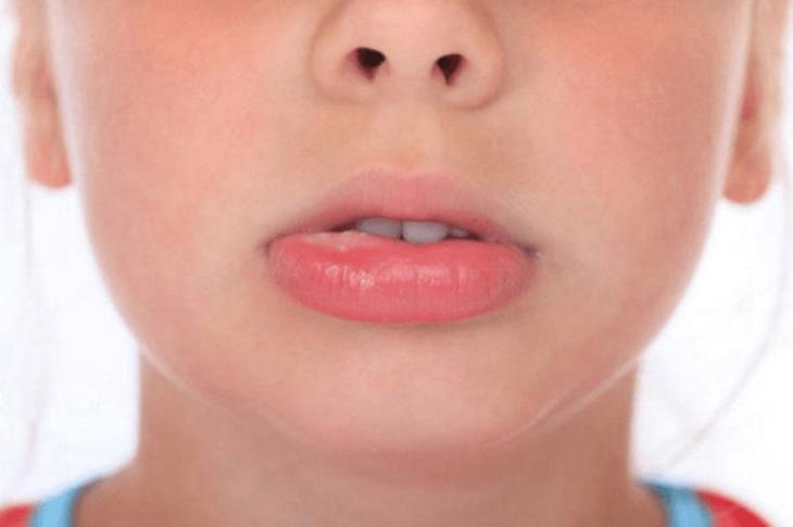 Nổi mề đay gây sưng môi là bệnh da liễu thường gặp ở mọi lứa tuổi