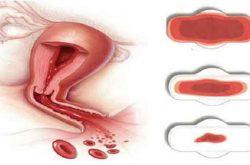 Rong kinh, rong huyết là gì? Nguyên nhân và cách điều trị