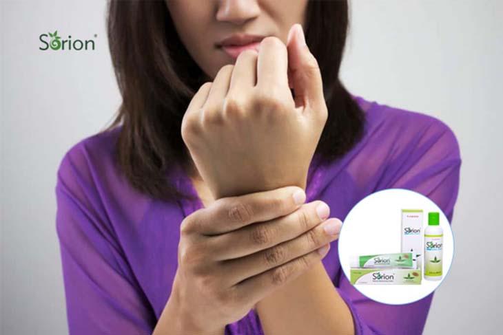 Sorion trị vảy nến có tác dụng dưỡng ẩm, làm dịu cơn ngứa hiệu quả