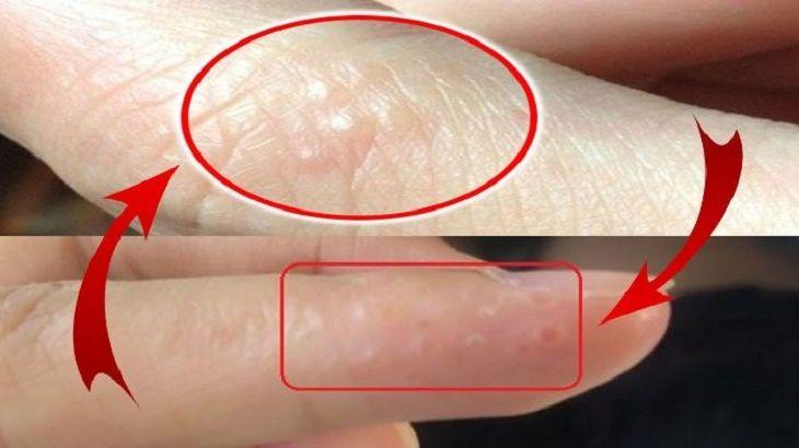 Có rất nhiều nguyên nhân gây ra tình trạng tay bị ngứa nổi mụn nước