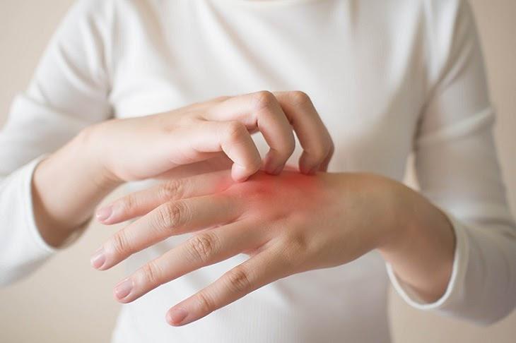Thuốc Beprosalic có thể gây ngứa, khô da, mẩn đỏ