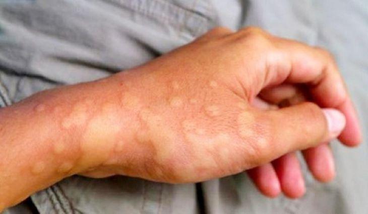 Việc dùng thuốc Tây chữa viêm loét dạ dày tá tràng có thể dẫn đến một số tác dụng phụ