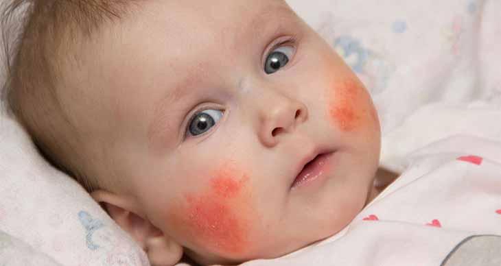 Muốn khỏi bệnh cần quan tâm trẻ bị viêm da cơ địa nên ăn gì