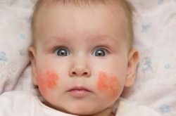 Chàm sữa là căn bệnh phổ biến thường gặp ở trẻ