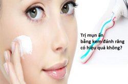 Trị mụn ẩn bằng kem đánh răng có hiệu quả không?