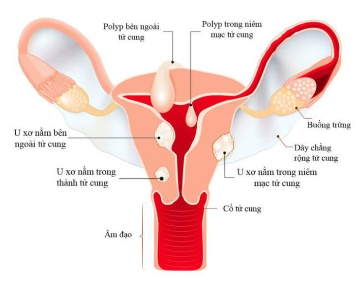 Tác dụng nổi bật của trinh nữ hoàng cung là điều trị hiệu quả u xơ tử cung