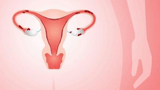 U lạc nội mạc tử cung là gì?