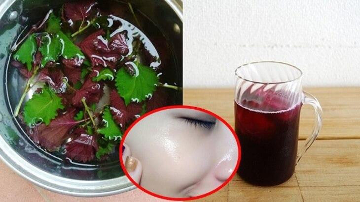 Uống nước lá tía tô trị mụn ẩn
