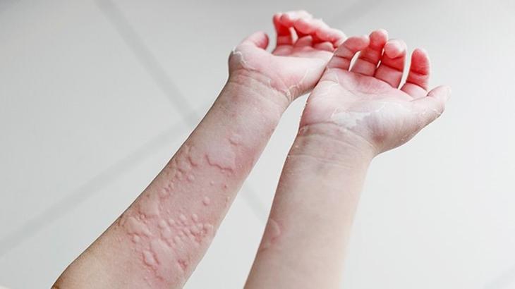 Bị nổi mề đay vào ban đêm có thể do tác dụng phụ của thuốc