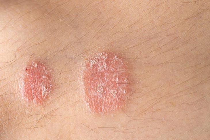 Một vùng da bị vảy nến điển hình