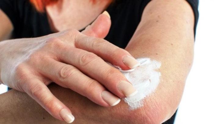Dưỡng ẩm da không chỉ giúp bệnh nhân giảm ngứa do vảy nến mà còn giúp người khỏe mạnh tránh được căn bệnh này