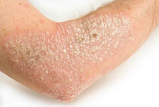 Vẩy nến không tự khỏi mà cần điều trị đúng cách để giảm triệu chứng và ngăn chặn biến chứng