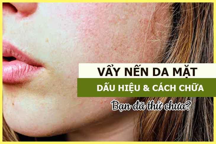 Vảy nến da mặt ảnh hưởng thẩm mỹ khiến người bệnh mất tự tin khi giao tiếp