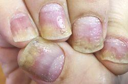 Vảy nến móng tay gây ra nhiều phiền toái cho người bệnh