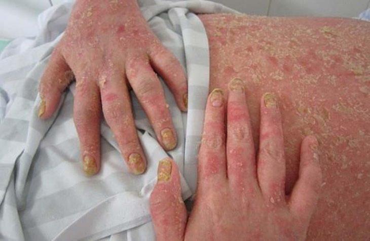 Biến chứng viêm khớp vảy nến do điều trị không kịp thời