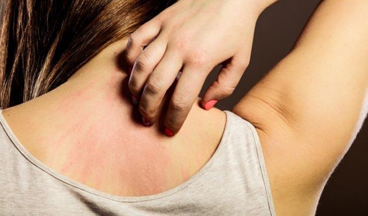 Ngứa là triệu chứng điển hình mắc vảy nến giọt