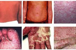 Vảy nến toàn thân tấn công đến 90% cơ thể khiến người bệnh vô cùng lo lắng