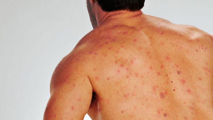 Vảy phấn hồng gây khó chịu cho người bệnh và mất thẩm mỹ