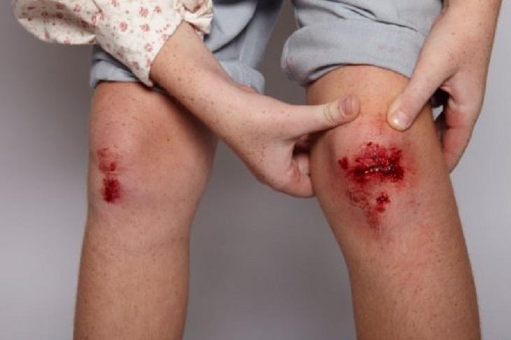 Da bị tổn thương, trầy xước cũng có thể là nguyên nhân gây vảy nến thể mủ