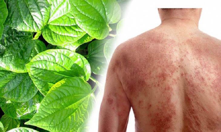 Lá lốt - Một trong những loại cây lá vườn nhà được sử dụng để chữa viêm da cơ địa