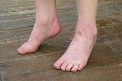 Bệnh viêm da cơ địa ở chân gây ngứa ngáy, khó chịu
