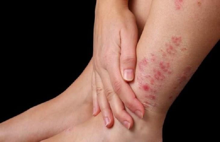 Nếu không điều trị đúng vùng da chân có thể nhiễm trùng