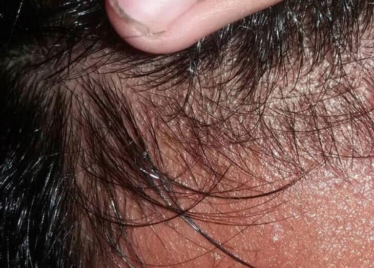 Da đầu thường xuyên ra mồ hôi, bẩn ngứa do tiếp xúc với môi trường nắng nóng, khói bụi