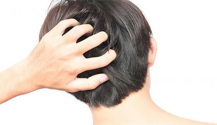 Người bệnh gãi liên tục sẽ khiến da đầu bị tổn thương