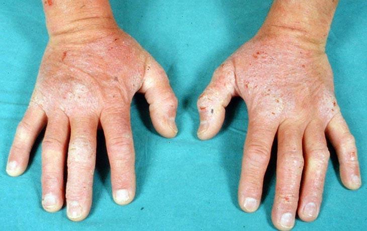 Bị viêm da cơ địa khiến da tay nứt nẻ, bong tróc, có thể biến dạng móng tay nếu điều trị sai cách
