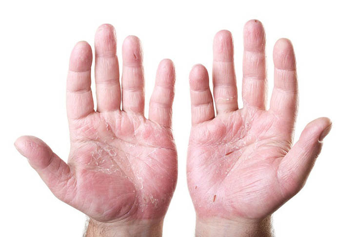 Viêm da cơ địa ở tay khiến người bệnh khô rát, khó chịu