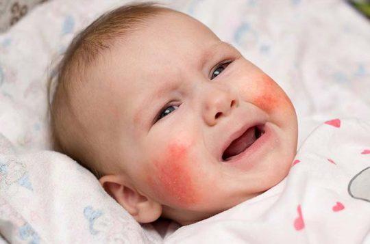 Viêm da cơ địa là bệnh lý thường gặp ở trẻ sơ sinh đến 6 tuổi