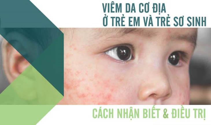 Viêm da cơ địa ở trẻ ảnh hưởng đến sinh hoạt của bé và khiến bố mẹ lo lắng