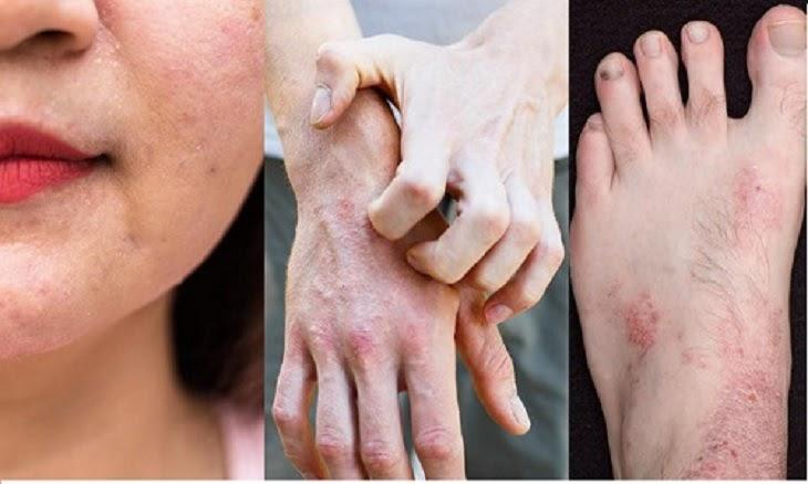 Người bệnh điều trị không đúng cách khiến viêm da cơ địa tái đi tái lại nhiều lần