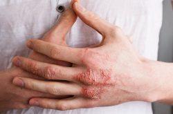 Viêm da cơ địa gây ngứa ngáy, da khô nứt nẻ