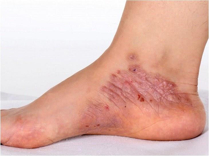 Viêm da thần kinh là một biến chứng phổ biến của bệnh viêm da cơ địa