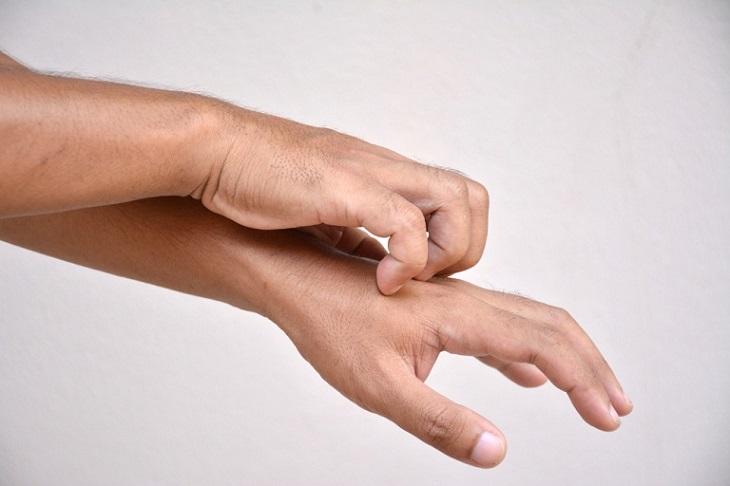 Viêm da tiếp xúc bội nhiễm khiến người bệnh ngứa ngáy