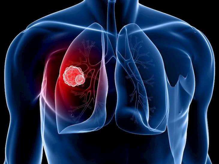 Viêm họng mãn tính là gì? Viêm họng mãn tính có thể gây ảnh hưởng xấu đến phổi